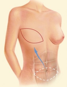 Breast Recon DIEP 2