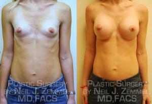 RichmondAestheticSurgery_BreastAug_Patient10