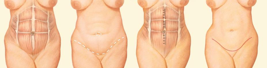 Tummy Tuck Abdominoplasty Richmond Charlottesville Va