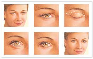 eyelid_surgery-300x192