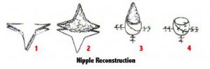 nipple_reconstruction