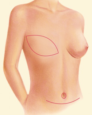 Breast Recon DIEP 1