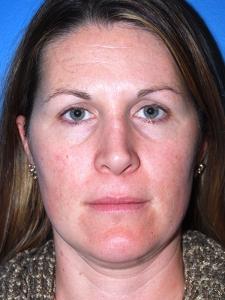 Facial cosmetic enhancement