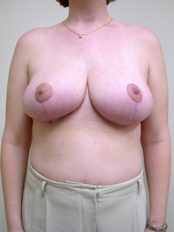 At what age do your breast stop developing