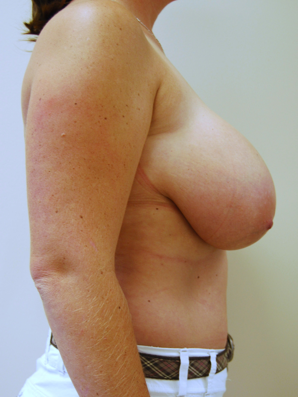 Neck pain large breasts